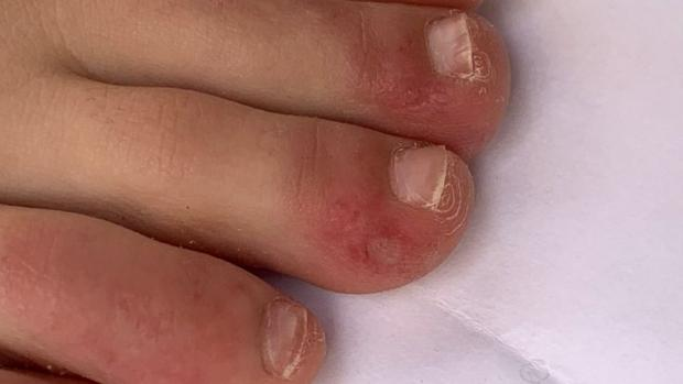 "Surrey Comet: ""Covid toe"" is a rash that can look like chilblains. Credit: COVID-PIEL STUDY"
